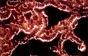 ストレス過多の人の赤血球連銭形成の状態